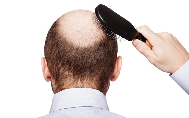 """""""Alopecia"""