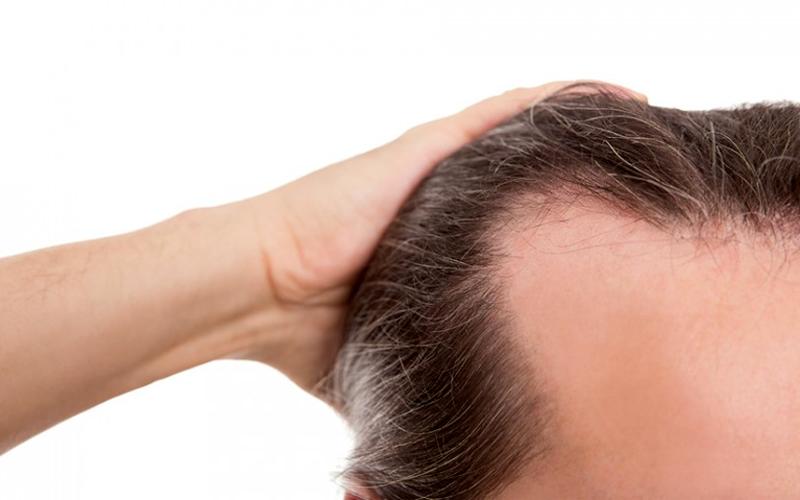 consejos-alopecia-masculina