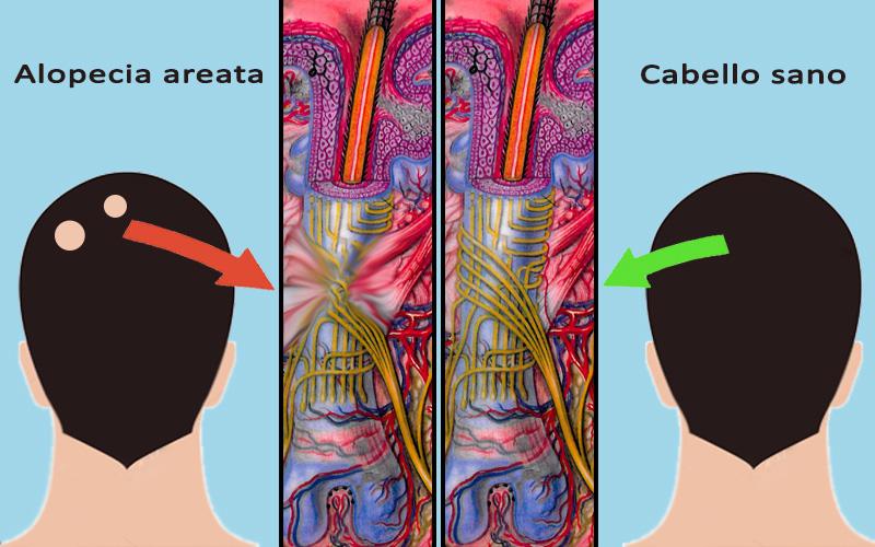 ¿Qué es la alopecia areata? La alopecia areata es un tipo de alopecia no cicatrizal que produce la pérdida del cabello rapidísimamente en forma de parches redondos. Normalmente son del tamaño de una moneda y van ampliándose hasta llegar a casi toda la cabeza.