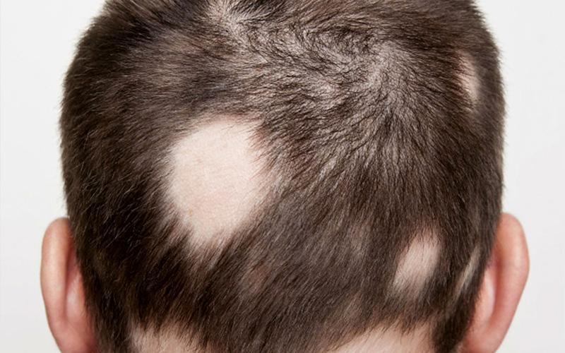 Resultado de imagen para alopecia
