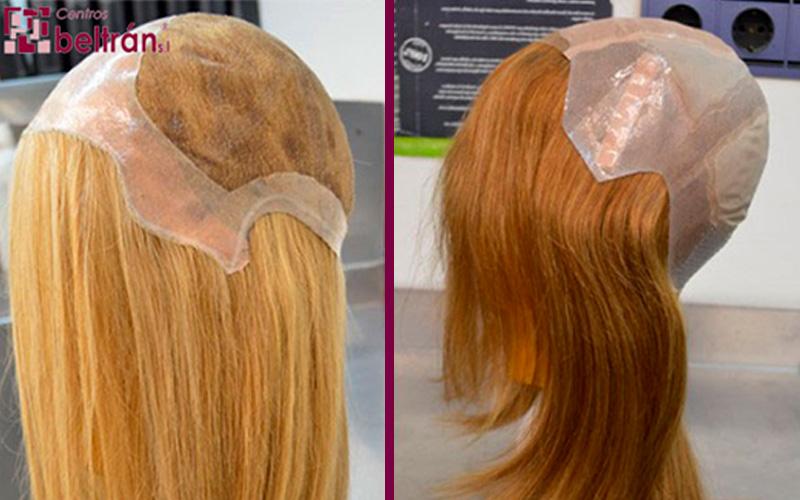 Aspectos a tener en cuenta a la hora de comprar una prótesis capilar. Si estás planteándote comprar una prótesis capilar, ya sea por problemas de alopecia o porque vas a perder el cabello como efecto secundario de un tratamiento médico como puede ser la quimioterapia, hay una serie de aspectos que tienes que tener en cuenta. ¡Te los detallamos a continuación!.