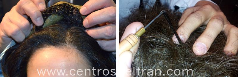 Aumentadores de cabello: tipos y colocación. La alopecia androgenética o la alopecia difusa en las mujeres produce la pérdida de cabello en la zona superior de la cabeza. Pero como todo problema, tiene solución. ¡Te contamos cómo con los aumentadores de cabello puedes recuperar y/o aumentar el volumen de tu pelo!