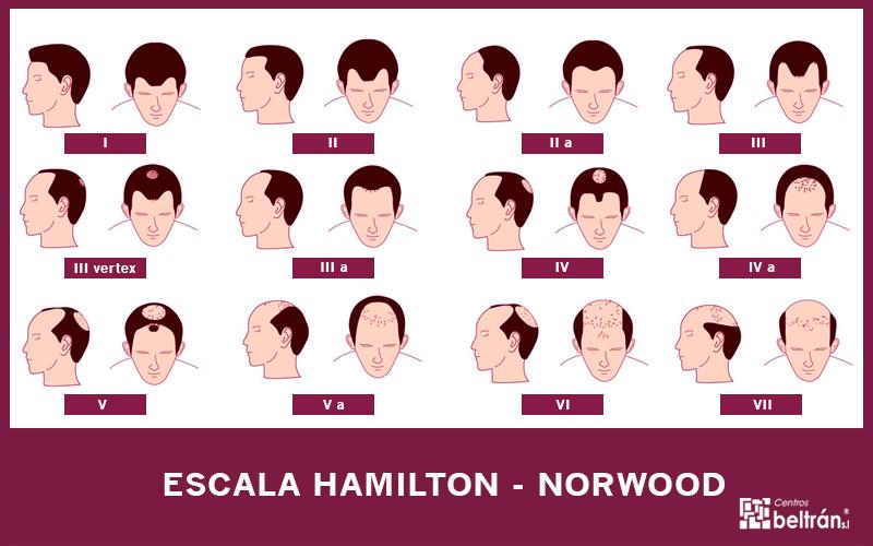 Alopecia androgenética: escala de Hamilton-Norwood y soluciones. La alopecia androgenética es el tipo de alopecia más común entre los hombres y está causada, generalmente, por factores genéticos y hormonales que atrofian el folículo piloso y acortan la fase de crecimiento del cabello. Este tipo de alopecia suele empezar a producirse después de la pubertad y para determinar el grado de alopecia que se padece se utiliza la escala Hamilton-Norwood. ¡Te explicamos los diferentes niveles!
