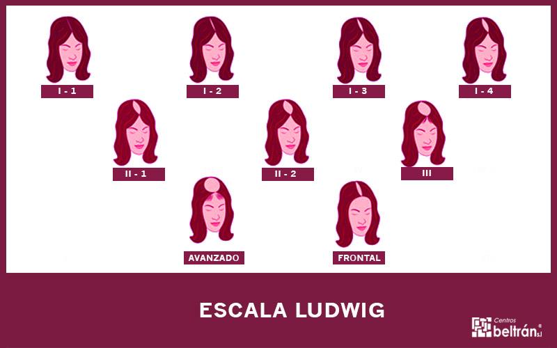 Alopecia femenina: escala de Ludwig. Si el otro día os explicábamos la escala Norwood – Hamilton y los diferentes niveles que tiene para medir el grado de la alopecia masculina, hoy queremos centrarnos la escala de Ludwig que es con la que se suelen categorizar los diferentes grados de la alopecia androgenética femenina.