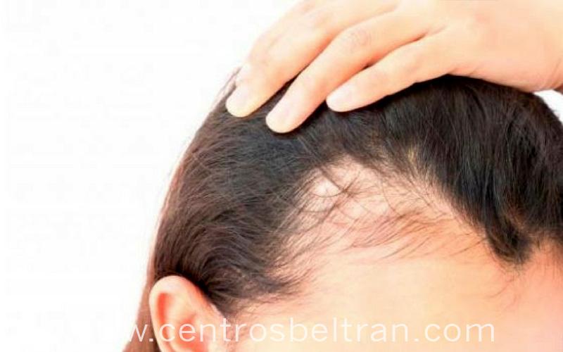 Muchas son las causas que producen la caída del cabello en las mujeres debido a los agentes externos o internos que dañan la salud de nuestro pelo.