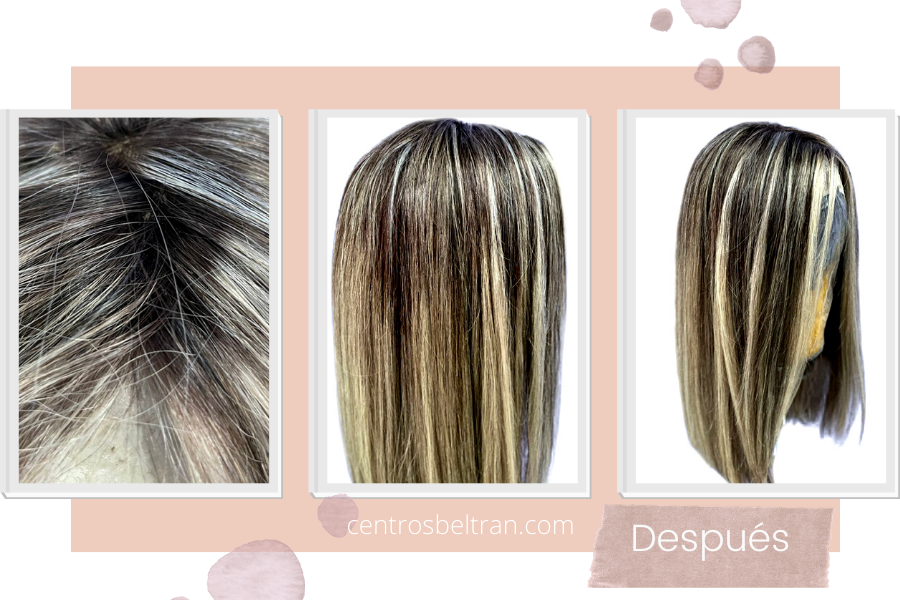 Relleno y cambio de color del cabello de una prótesis capilar
