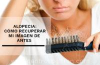 Alopecia: cómo recuperar mi imagen de antes